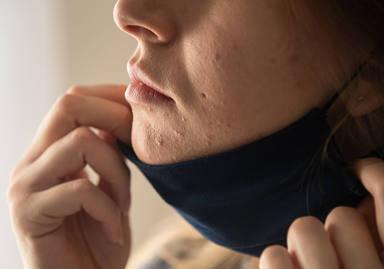"""¿Sabes lo que es el """"maskné""""? Mucho cuidado porque podría arruinar la piel de tu cara"""