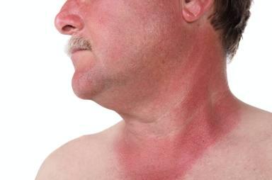 ¿Qué cuidados especiales necesita nuestra piel este verano para tomar el sol?