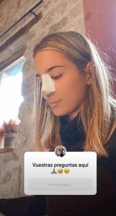 María Pombo desvela la historia que hay detrás de su operación de nariz
